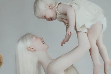 albino sisters photoshoot kazakhstan asel kalaganova fb7